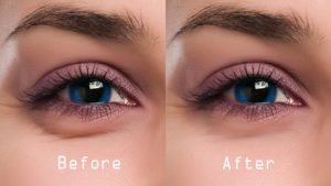 Tips to prevent dark circles tips to prevent dark circles Tips to prevent dark circles maxresdefault 300x169